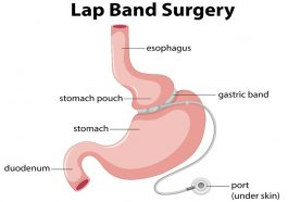 What are the pros of a lap band